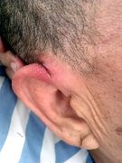李洪奎的右侧耳部有一长3CM左右纵向豁裂伤口